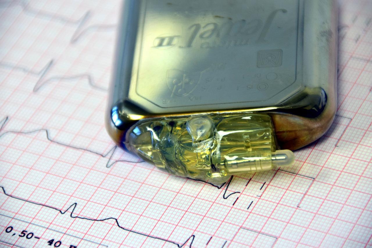 Para que serve o marca passo cardíaco