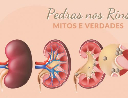 Mitos e verdades sobre as pedras nos rins