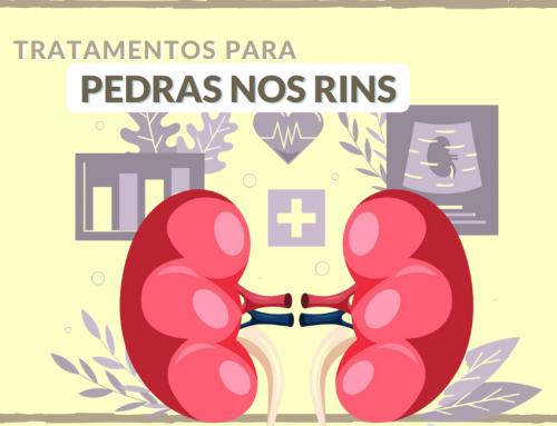Quais os tratamentos mais indicados para cálculo renal?